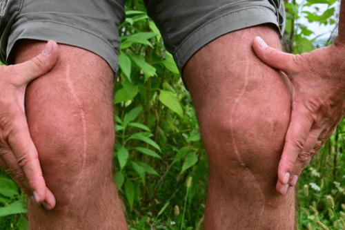 Klachten door littekens verminderen